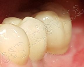 Немедленная имплантация 36 зуба, система имплантов MEGAGEN