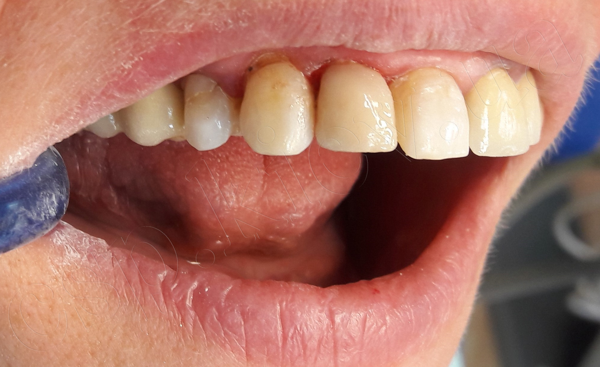 Реставрація 12 зуба фотополімерним матеріалом.