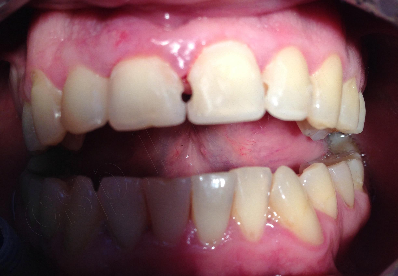 Відновлення анатомічної форми 11,21,22 зубів