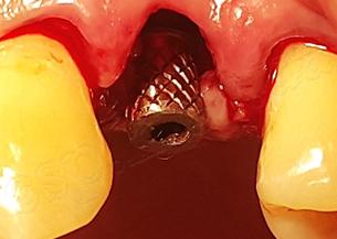 Одномоментная имплантация в лунку удаленного 24 зуба с немедленным протезированием (система дентальных имплантов MEGAGEN)