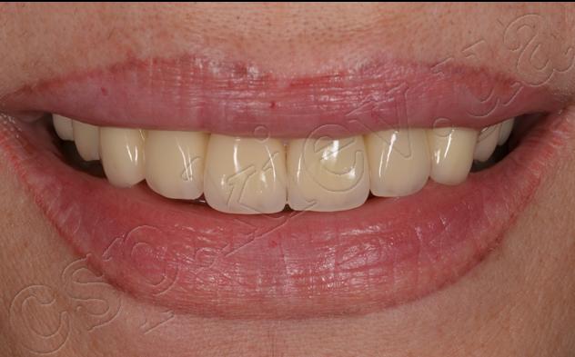 Восстановление функции и эстетики зубных рядов с использованием неметаллических коронок и дентальных имплантов Ankylos