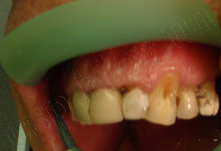 Реставрация 22 и 23 зубов с имитацией десен на 23 зубе