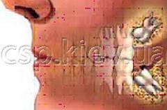 Чи видаляти зуб мудрості? Зуб мудрості болить після видалення. Що робити?