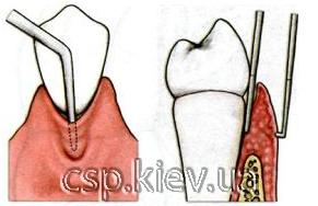 Гінгівектомія