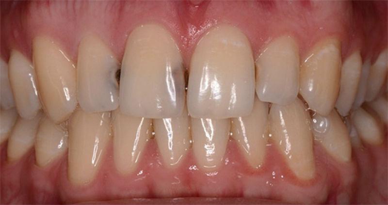 Контактный кариес 11 и 12 зубов