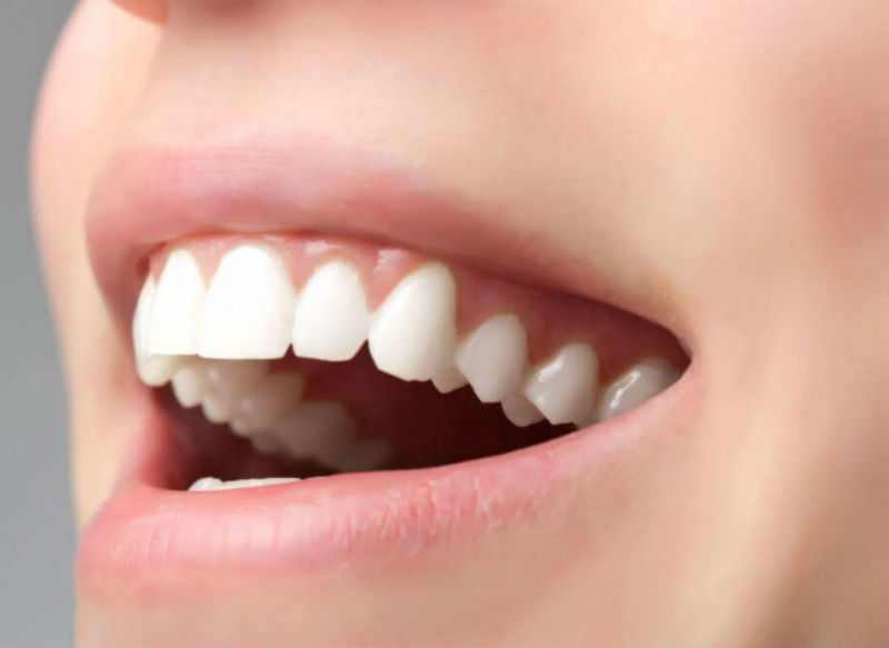 Диагноз: косметический дефект зуба и кровоточивость десны