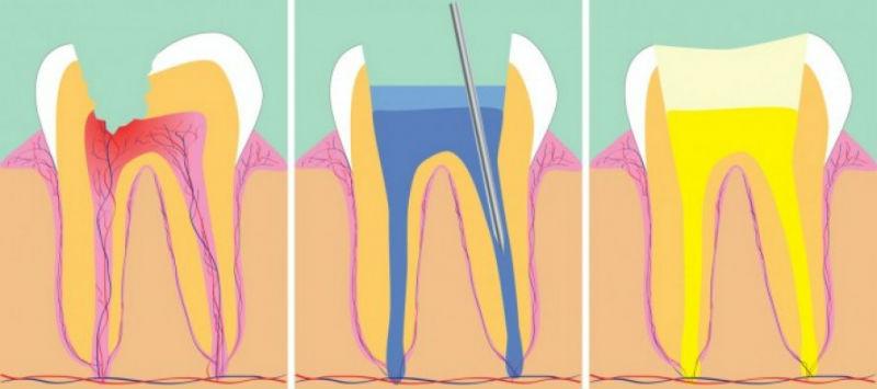 Хронический периодонтит 43 зуба, атипическое количество корневых каналов