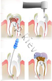 Пломбування зубів
