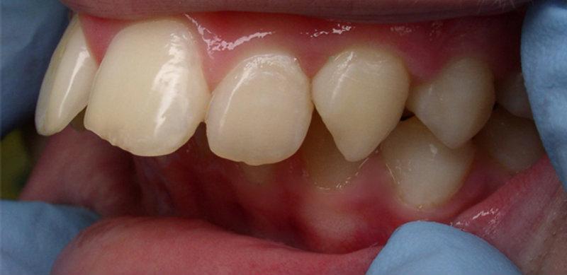 Медицинская реабилитация участников АТО с дефектами зубных рядов