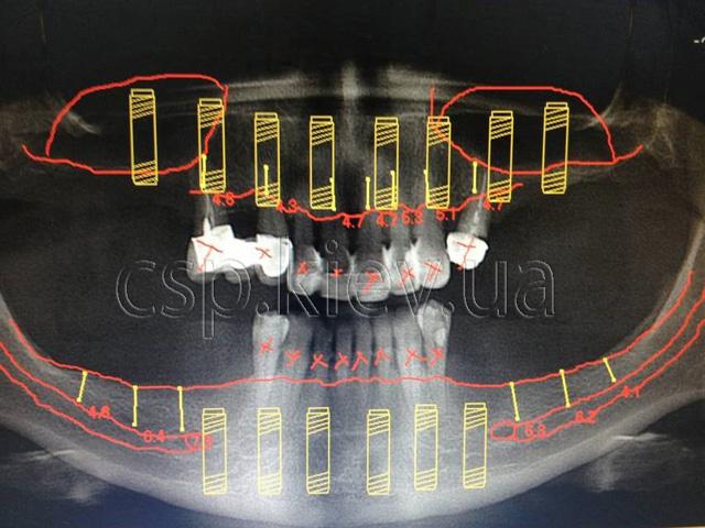 Особливості проведення дентальної імплантації у пацієнтів  з генералізованими формами  парадонтита