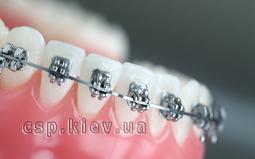 Ортодонтичний прийом