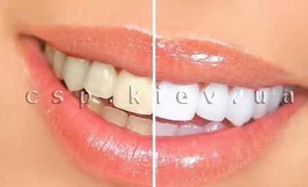 Вибілювання зубів