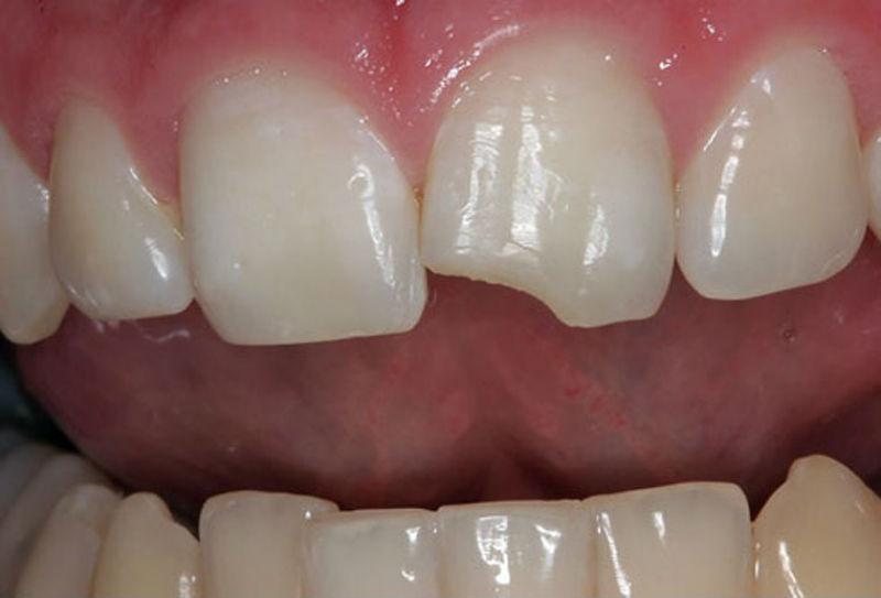 Диагноз: Скол режущого края коронок 21,11 зубов