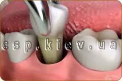 Видалення зуба