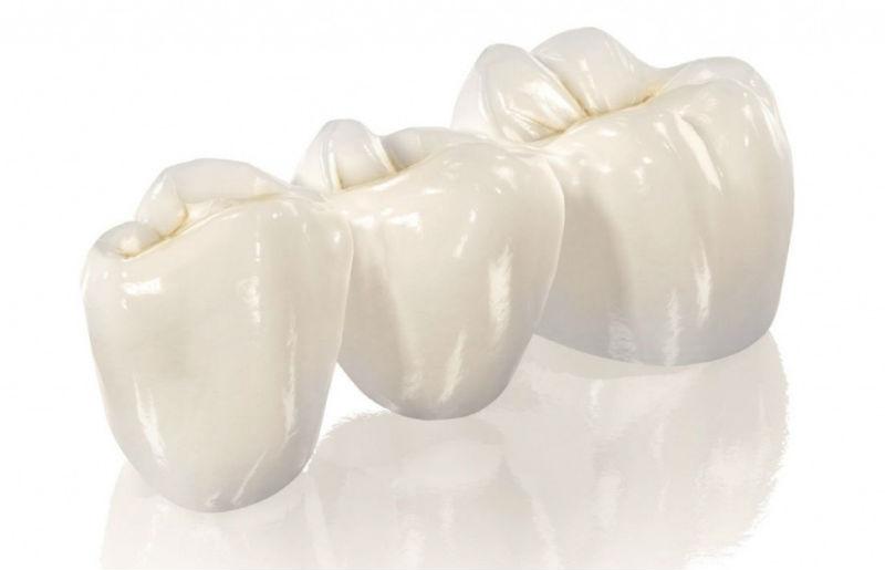 Восстановление анатомической формы зубов