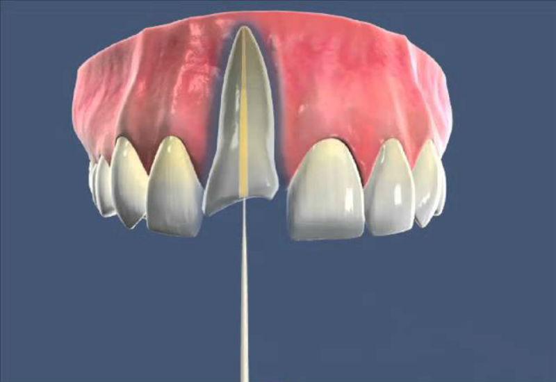 Восстановление зуба после  эндодонтического лечения  стекловолоконным штифтом